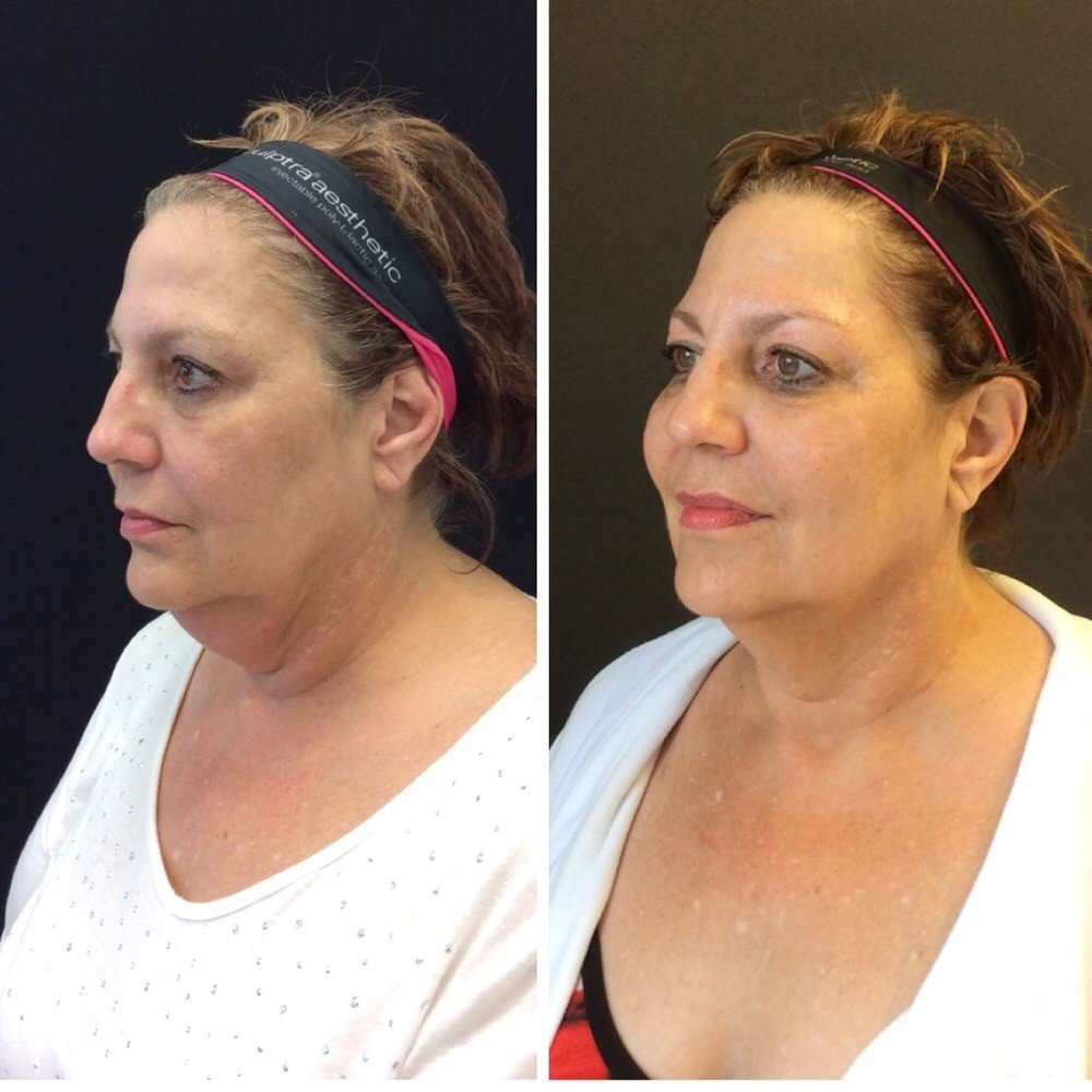 kybella-before-after-chicago
