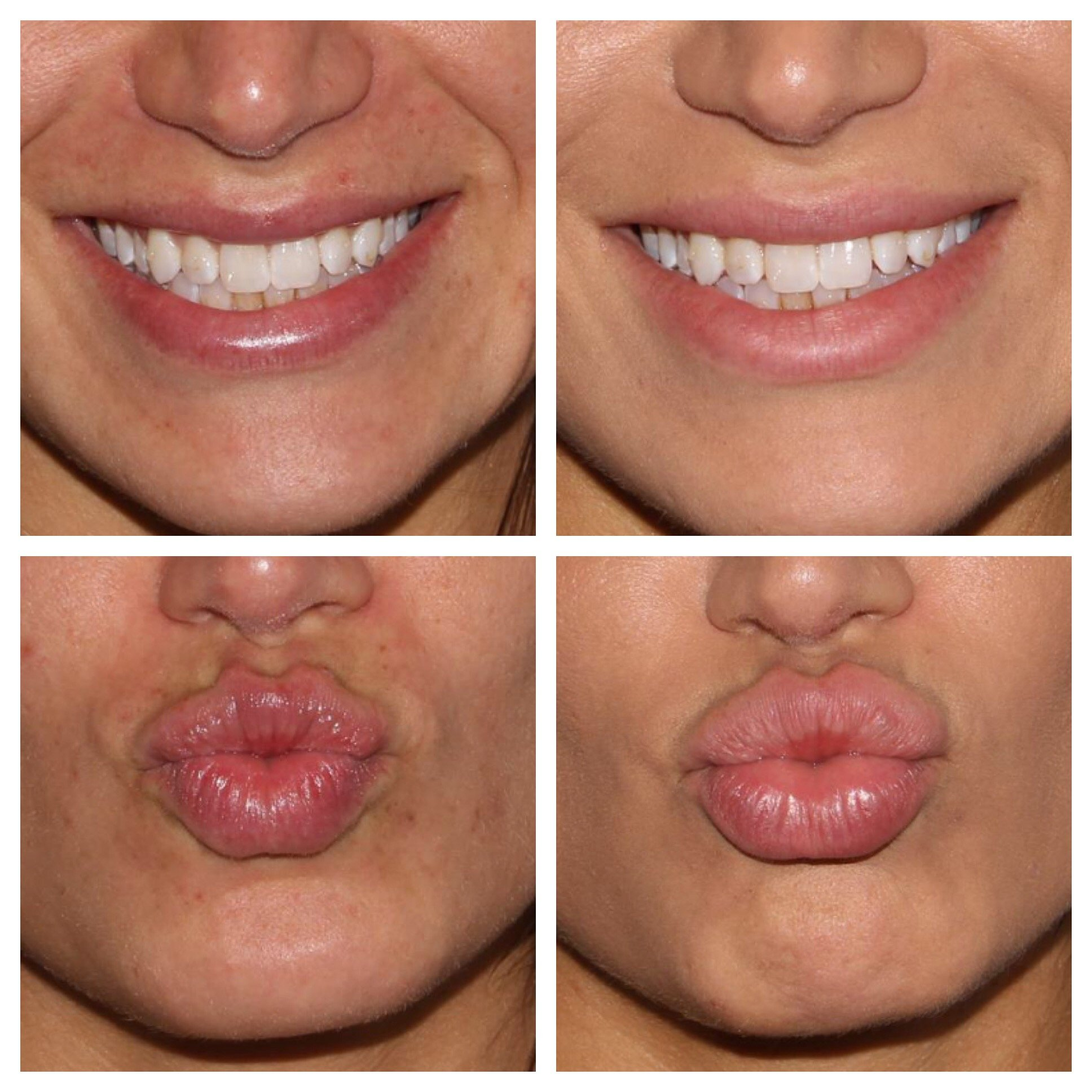 Bofore and 2 Weeks After Restylane Refyne to Lips