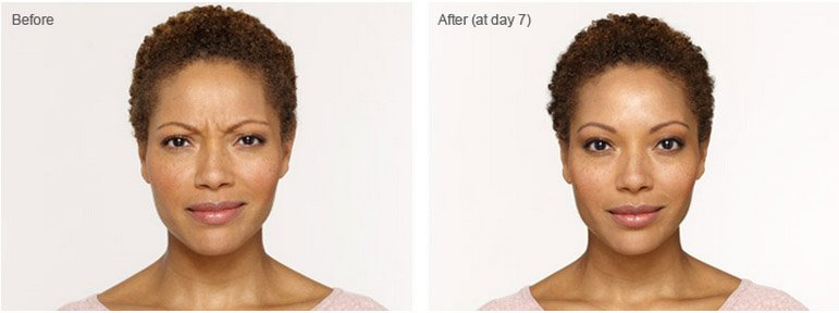 botox-cosmetic-before-after-1