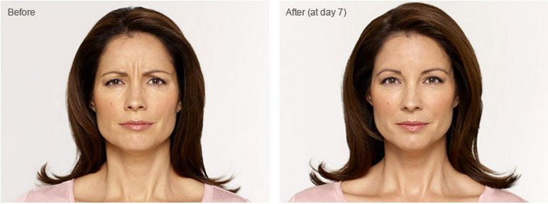 botox-cosmetic-before-after-2