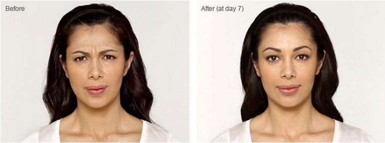 botox-cosmetic-before-after-3