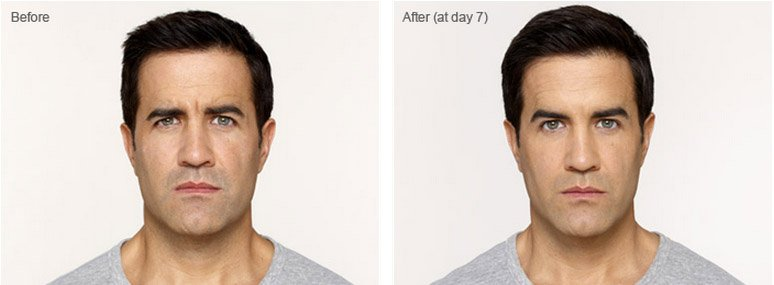 botox-cosmetic-before-after-4