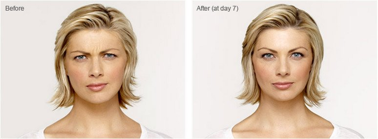 botox-cosmetic-before-after-5
