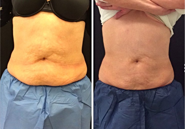 coolsculpting-before-after-1