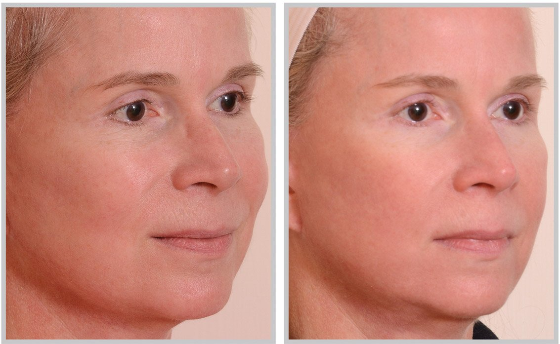 halo-laser-before-after-1