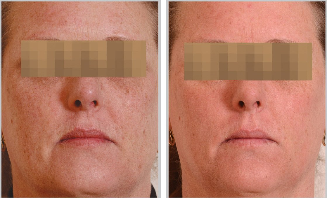 halo-laser-before-after-3