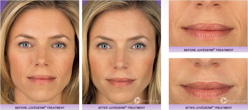 juvederm-xc-before-after-1