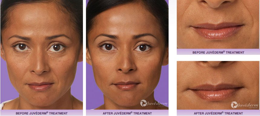 juvederm-xc-before-after-3