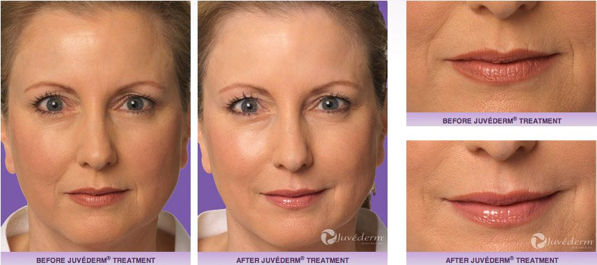 juvederm-xc-before-after-4