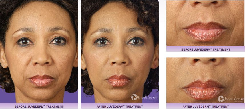juvederm-xc-before-after-5