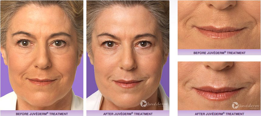 juvederm-xc-before-after-6