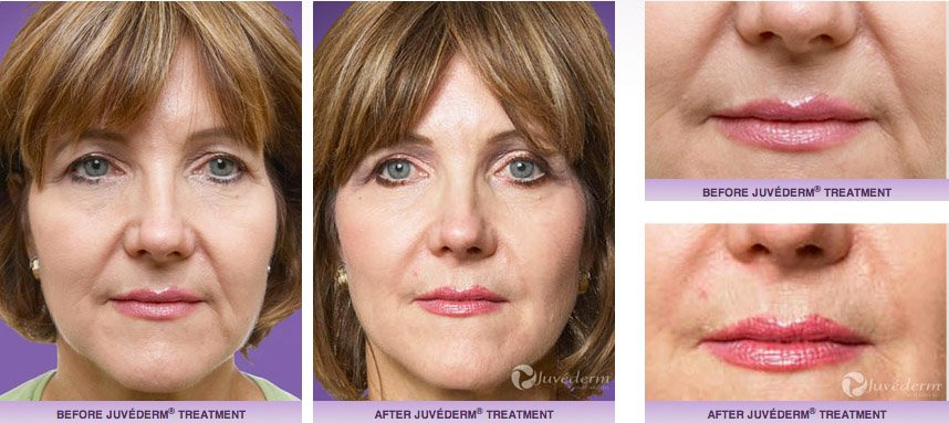 juvederm-xc-before-after-7