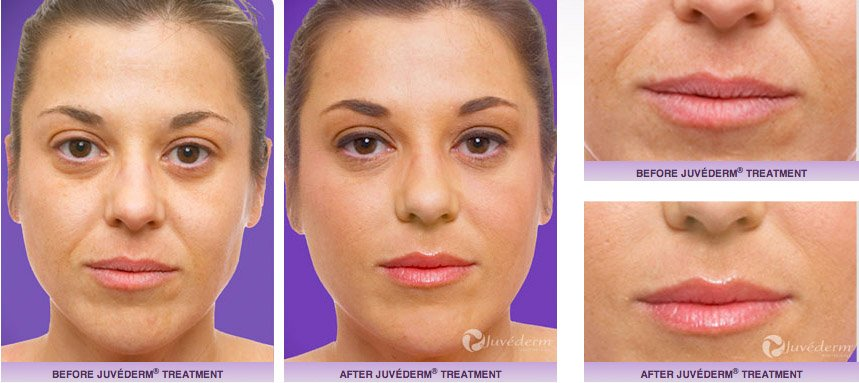 juvederm-xc-before-after-8