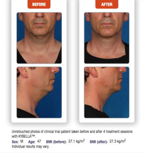 kybella-before-after-5