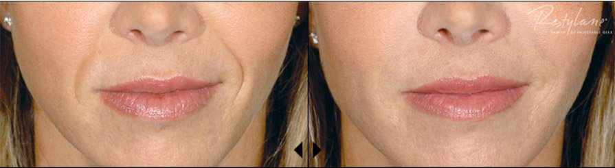 restylane-restylane-l-before-after-1