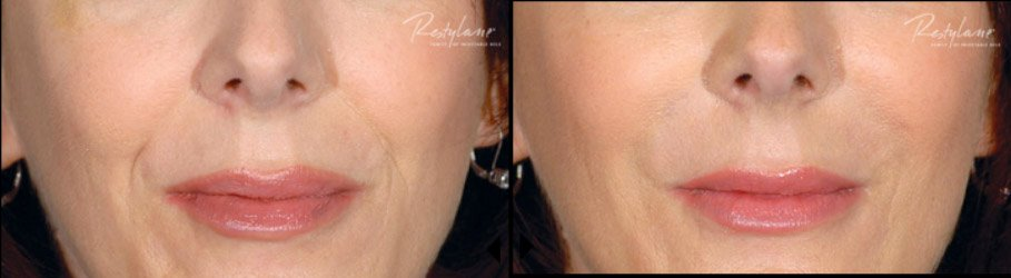 restylane-restylane-l-before-after-3