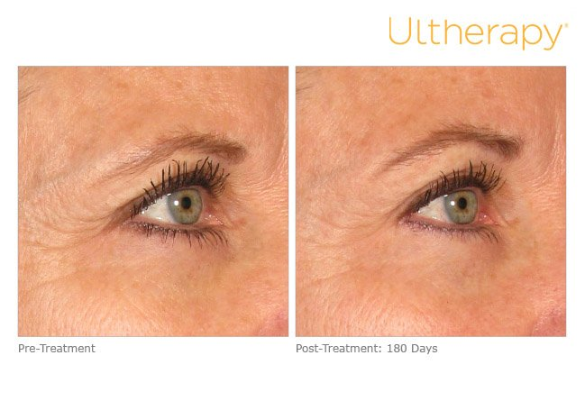 ultherapy-brow-before-after-1
