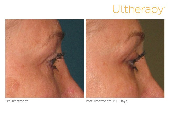 ultherapy-brow-before-after-3