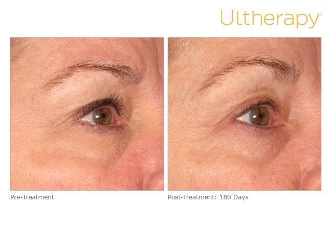 ultherapy-brow-before-after-4