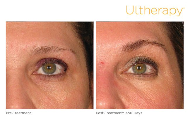 ultherapy-brow-before-after-5
