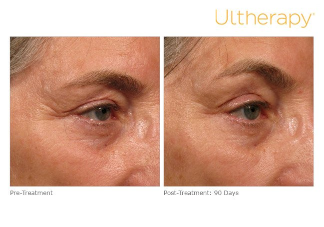 ultherapy-brow-before-after-6