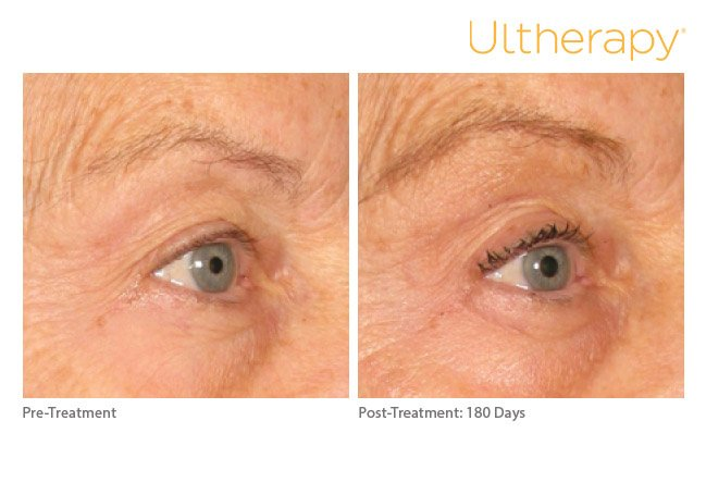 ultherapy-brow-before-after-8
