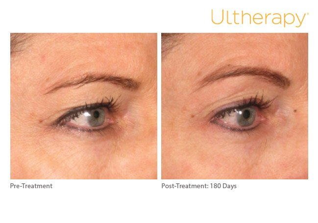 ultherapy-brow-before-after-9