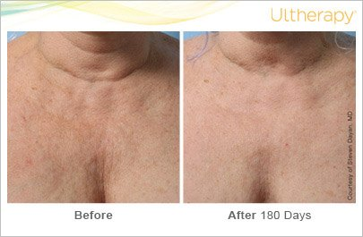 ultherapy-chest-before-after-1
