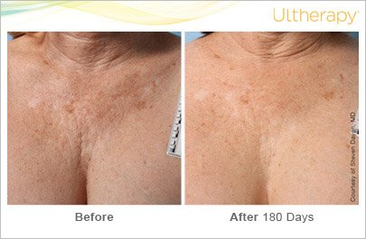 ultherapy-chest-before-after-2
