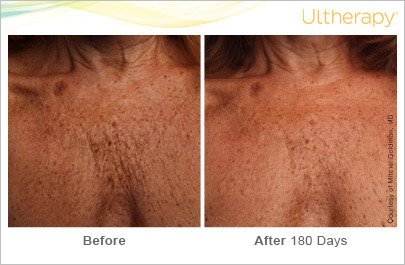 ultherapy-chest-before-after-3
