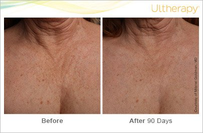 ultherapy-chest-before-after-4