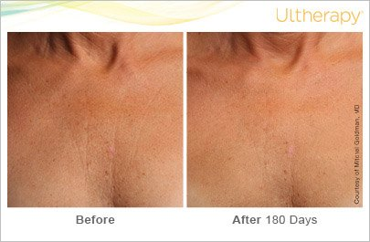ultherapy-chest-before-after-5