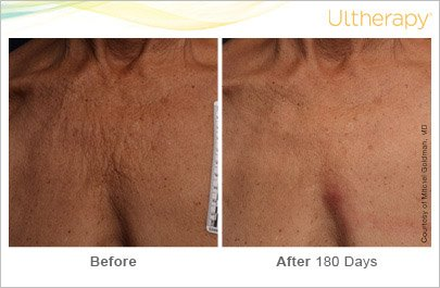 ultherapy-chest-before-after-6