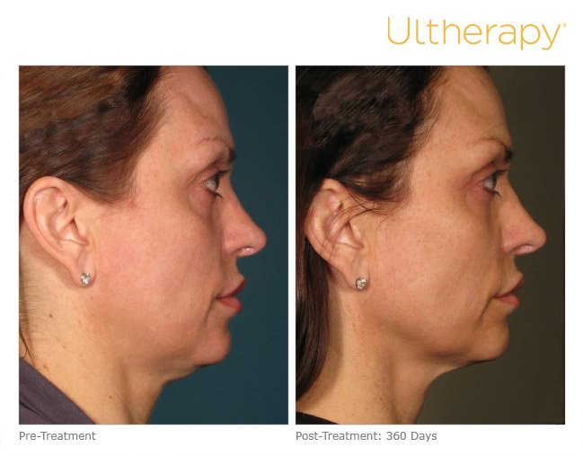 ultherapy-full-face-before-after-1