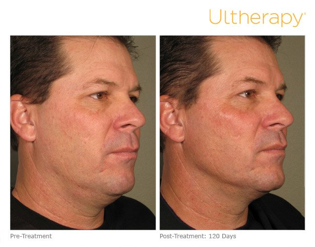 ultherapy-full-face-before-after-2