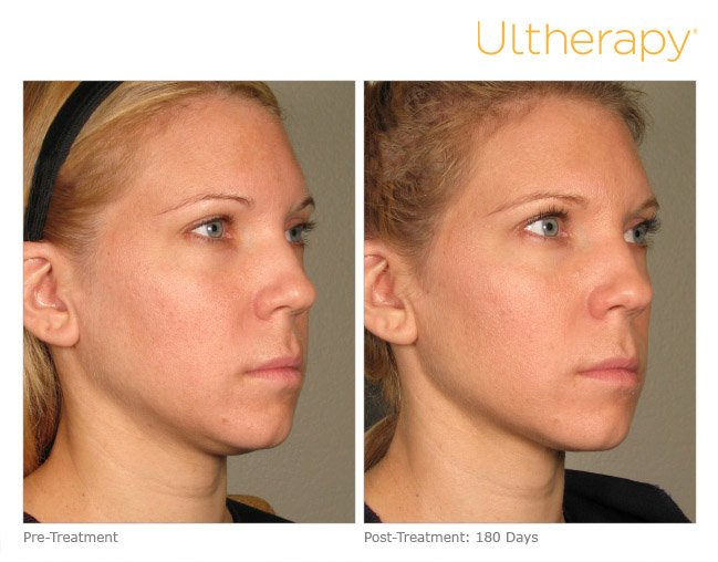 ultherapy-full-face-before-after-3