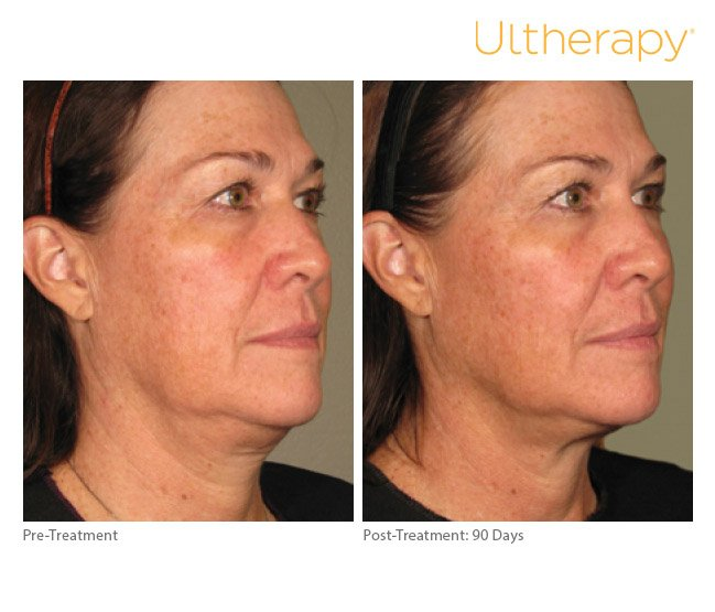 ultherapy-full-face-before-after-4