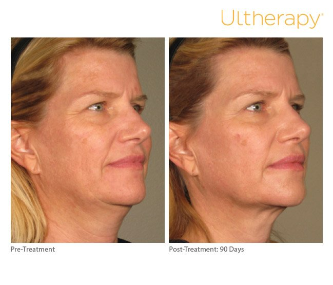 ultherapy-full-face-before-after-6