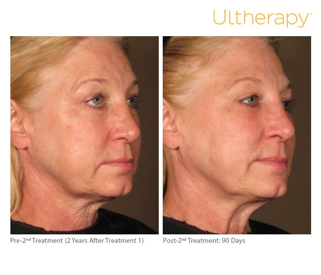 ultherapy-full-face-before-after-7