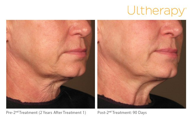 ultherapy-lower-face-before-after-7