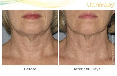 ultherapy-neck-before-after-2