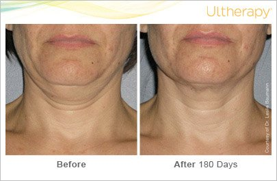 ultherapy-neck-before-after-3