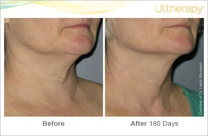 ultherapy-neck-before-after-4