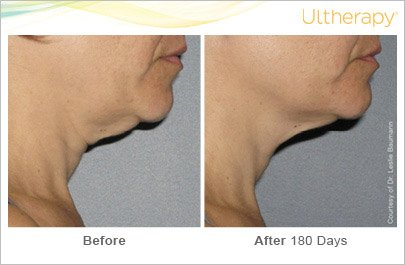 ultherapy-neck-before-after-5