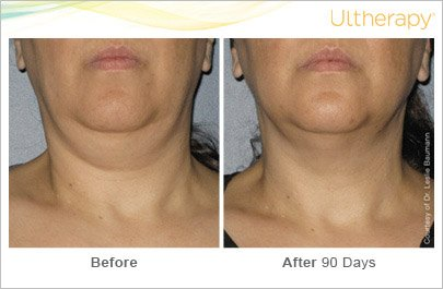 ultherapy-neck-before-after-6