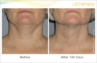 ultherapy-neck-before-after-7