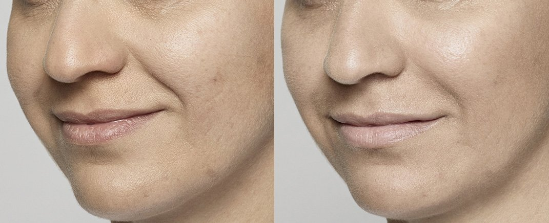 before-after-restylane-lyft-2