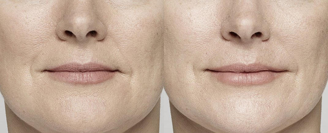 before-after-restylane-lyft-3