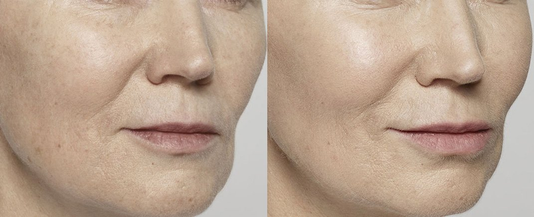 before-after-restylane-lyft