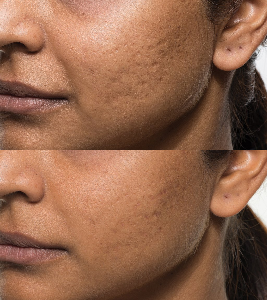 Acne_Patient_2_before_after